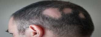 types-of-alopecia-you-should-know-